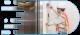 سرویسکار آسانسور در کرج
